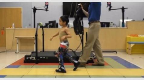 أطراف روبوتية تساعد مرضى الشلل الدماغي