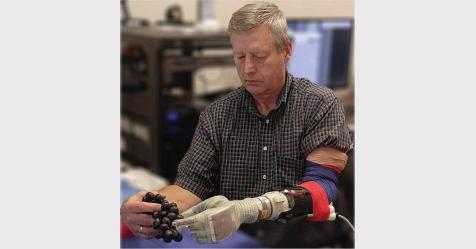 ابتكار ذراع روبوتية تمكن مبتورى الأطراف من اللمس والشعور