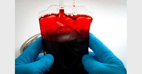 علماء يابانيون يتمكنون من اختراع الدم الاصطناعي الأول في العالم